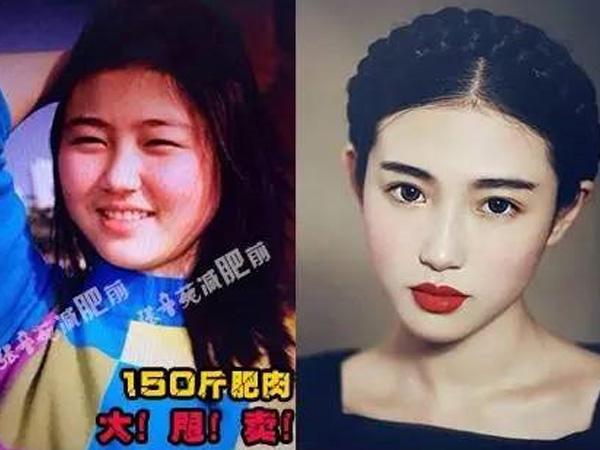 张辛苑减肥前后照片对比,曾经也是一个150斤的小胖妞