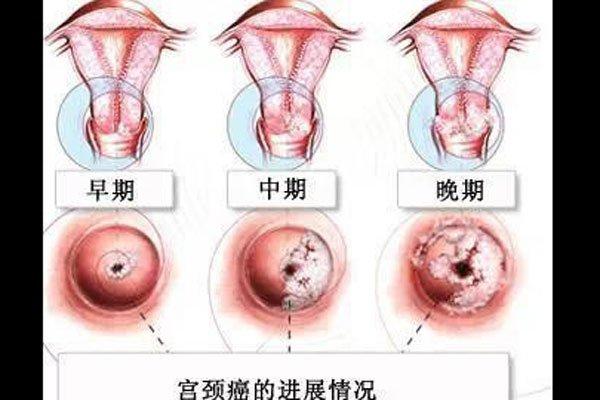 梅艳芳肿瘤位置肛门 有病不去治等到死了后悔莫及